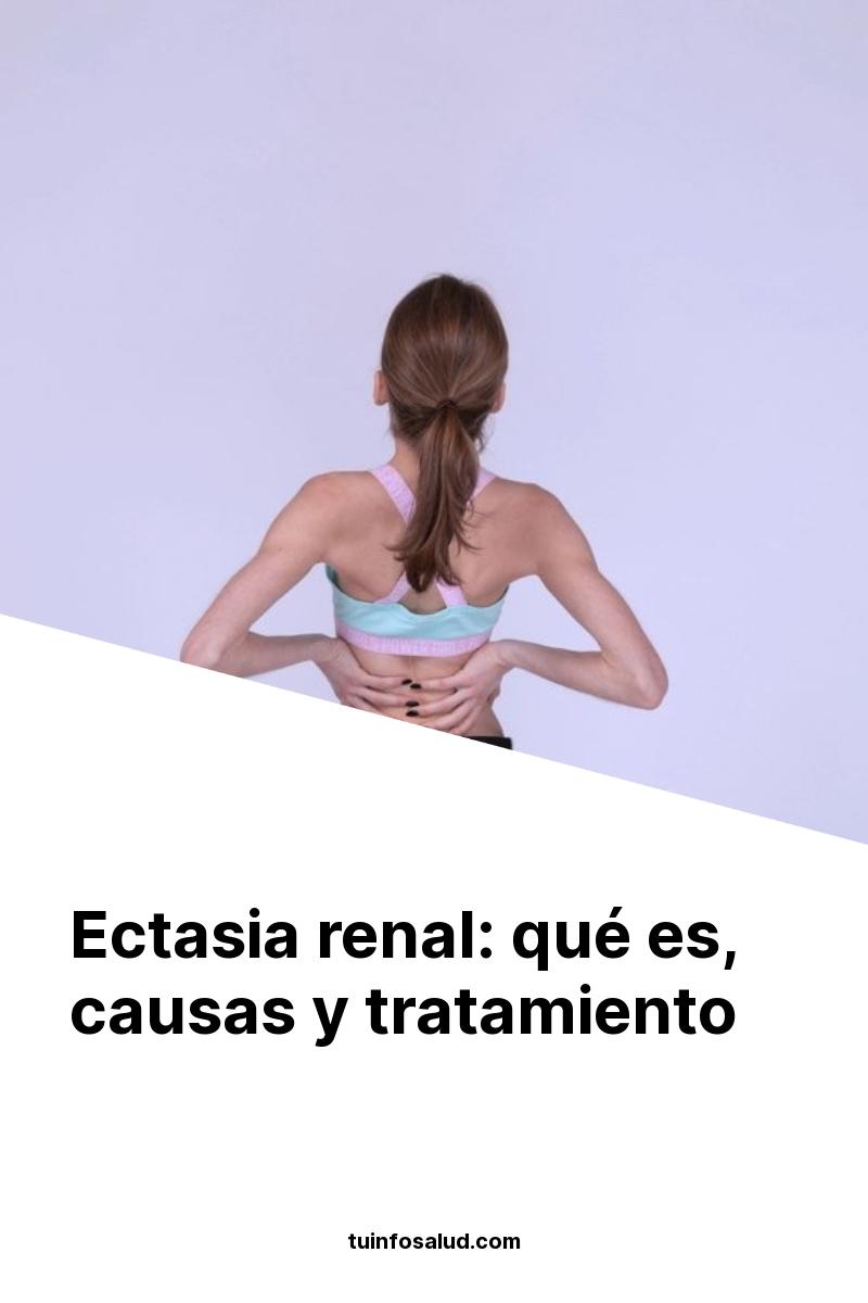 Ectasia renal: qué es, causas y tratamiento