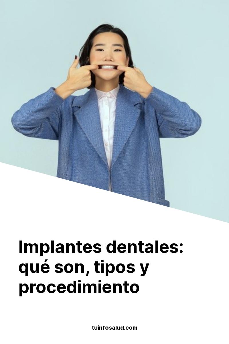 Implantes dentales: qué son, tipos y procedimiento